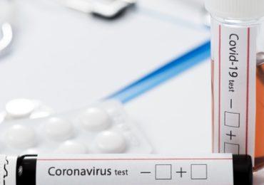 CBF divulga relatório de testagem de Covid-19 no Brasileirão