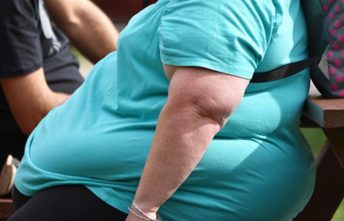 Covid-19: 59% dos casos graves estão relacionados à obesidade
