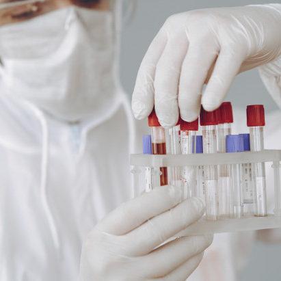 Nova variante do coronavírus aparece em exames da Copa América