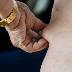 Pesquisa do IBGE alerta para políticas de saúde para obesos