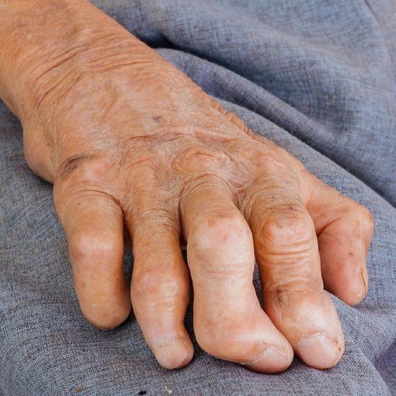 RJ pode prorrogar indenização a ex-pacientes com hanseníase
