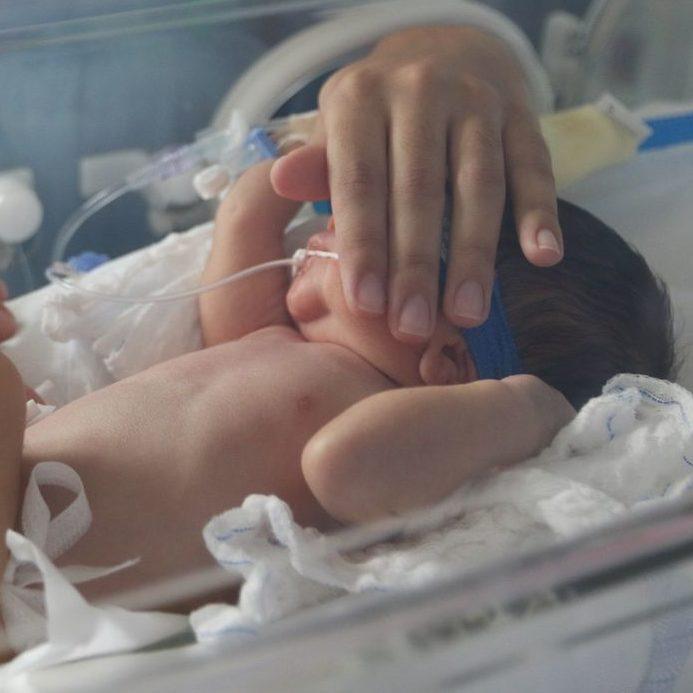 Cerca de 1,3 mil bebês morreram no Brasil por Covid-19