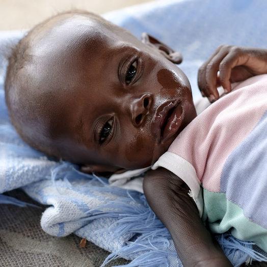 """ONU considera """"preocupante"""" fome e desnutrição na Etiópia"""