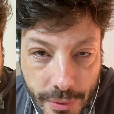 Reação alérgica de Danilo Gentili é alerta para cuidado com medicamentos